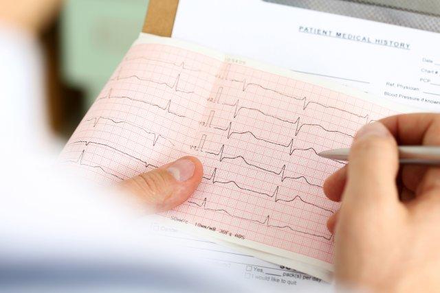 Как избавиться от одышки при сердечной недостаточности