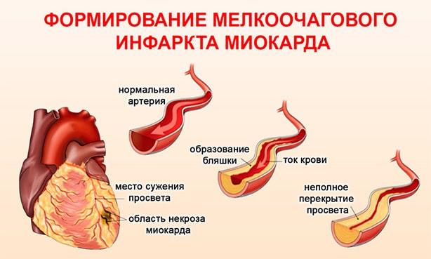 Скрытый инфаркт миокарда