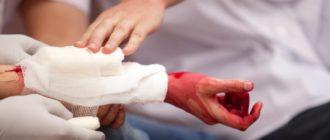 Помощь при артериальном кровотечении