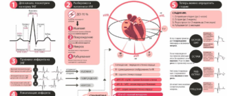 Инфаркт миокарда: шансы выжить