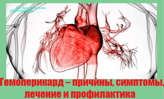 Гемоперикард при остром инфаркте миокарда