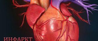 Что нельзя при инфаркте миокарда